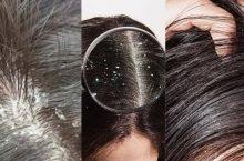 Tại sao da đầu bị gàu từng mảng và cách trị hiệu quả